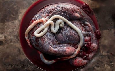 Midwife Moments- Placenta